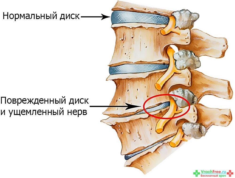 Как лечить остеохондроз шейного отдела симптомы