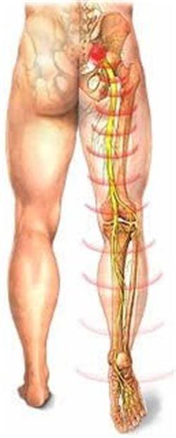 После операции позвоночной грыжи болит нога